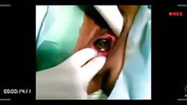 Performing Vagina Operation.